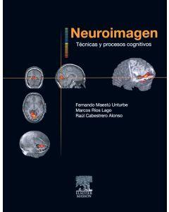 Neuroimagen. Técnicas y procesos cognitivos