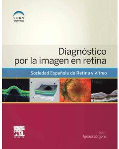 Diagnóstico por la imagen en retina