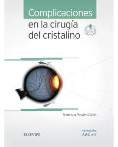 Complicaciones en la cirugía del cristalino